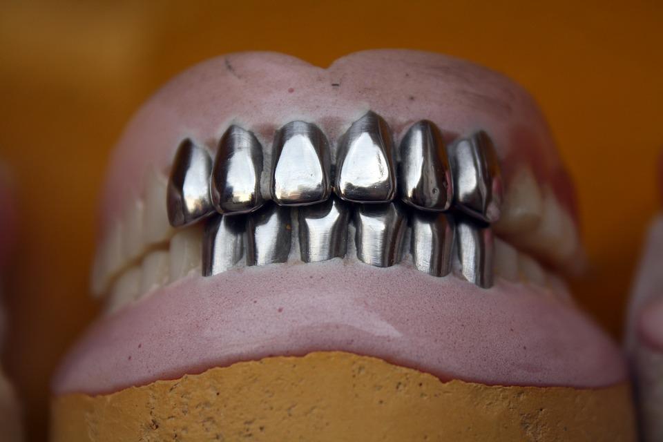 Prótesis dentales metálicas